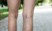 5 Foods That Fight Varicose Veins